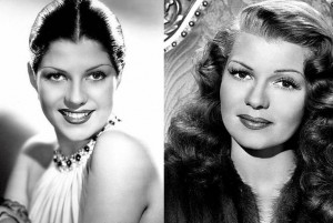 Rita Hayworth before-after-hairline-electrolysis
